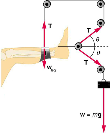 Diagram of a leg in traction.