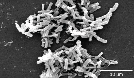 Micrograph shows small clusters of white rod-shaped bacteria against a dark background.