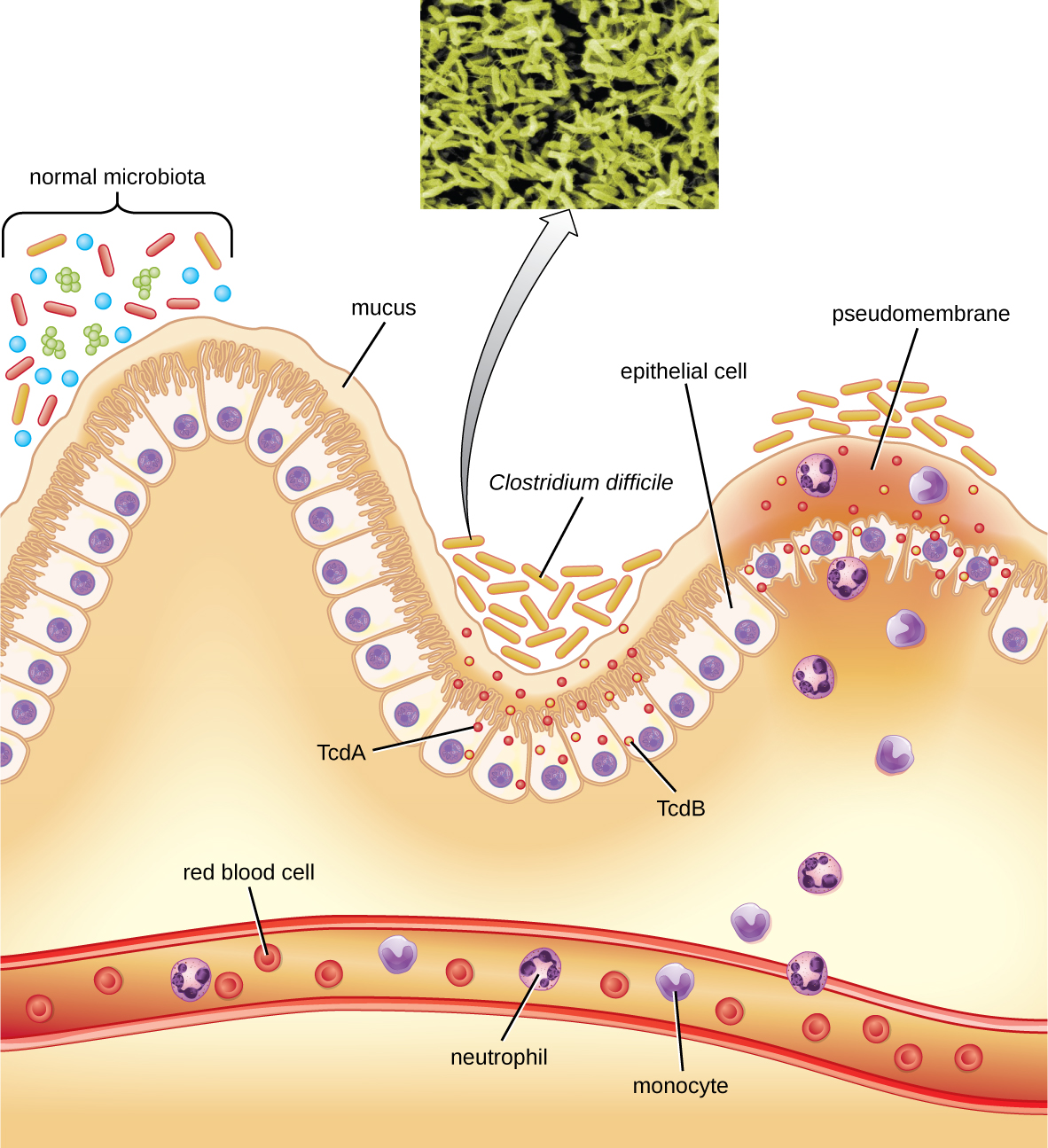 Bacterial Infections of the Gastrointestinal Tract - Microbiology ...