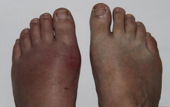 Photo shows a toe that is swollen and red.