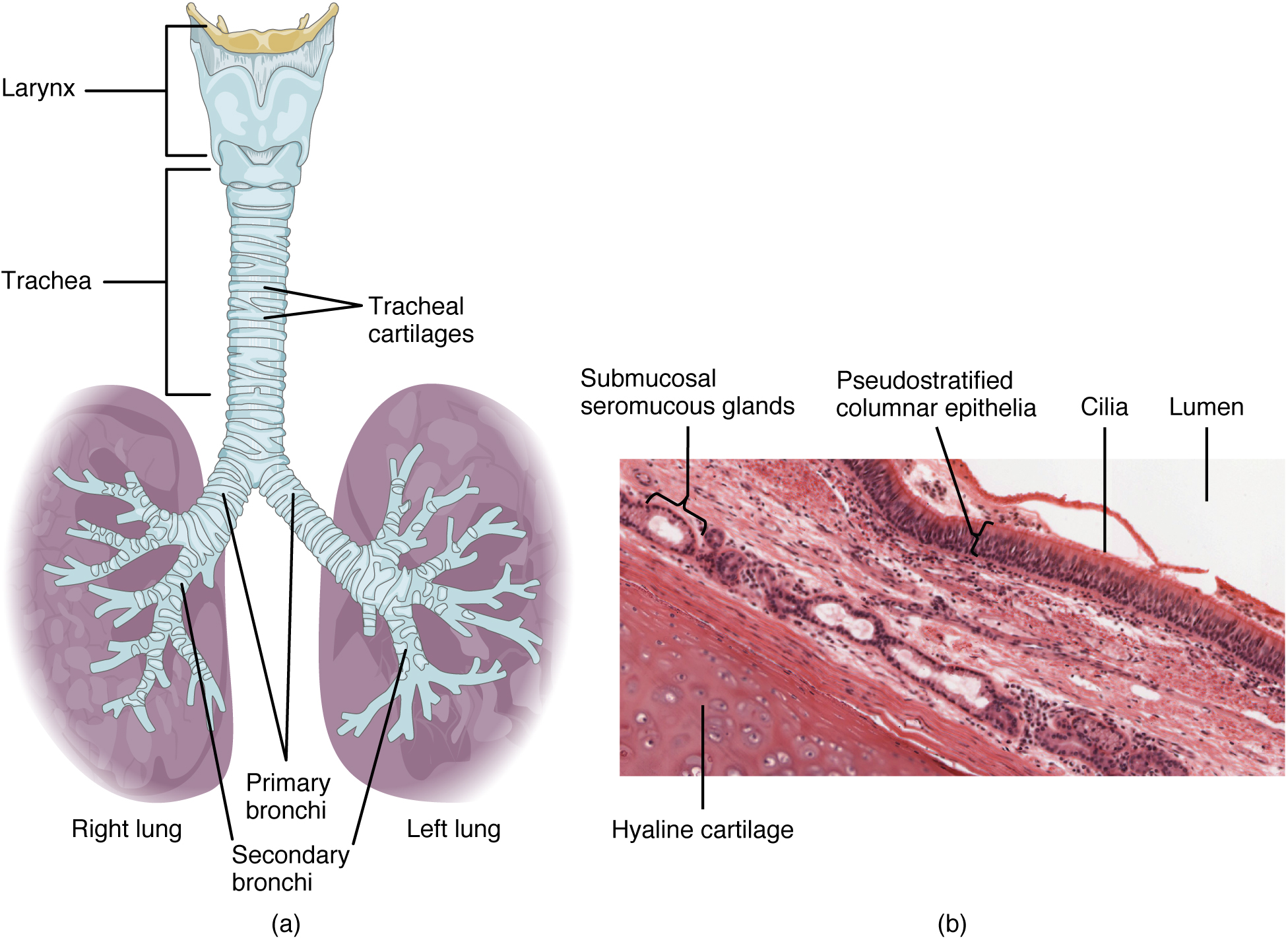 Trachea diagram labeled smokers lungs pictures smokers lungs trachea diagram labeled pooptronica Images