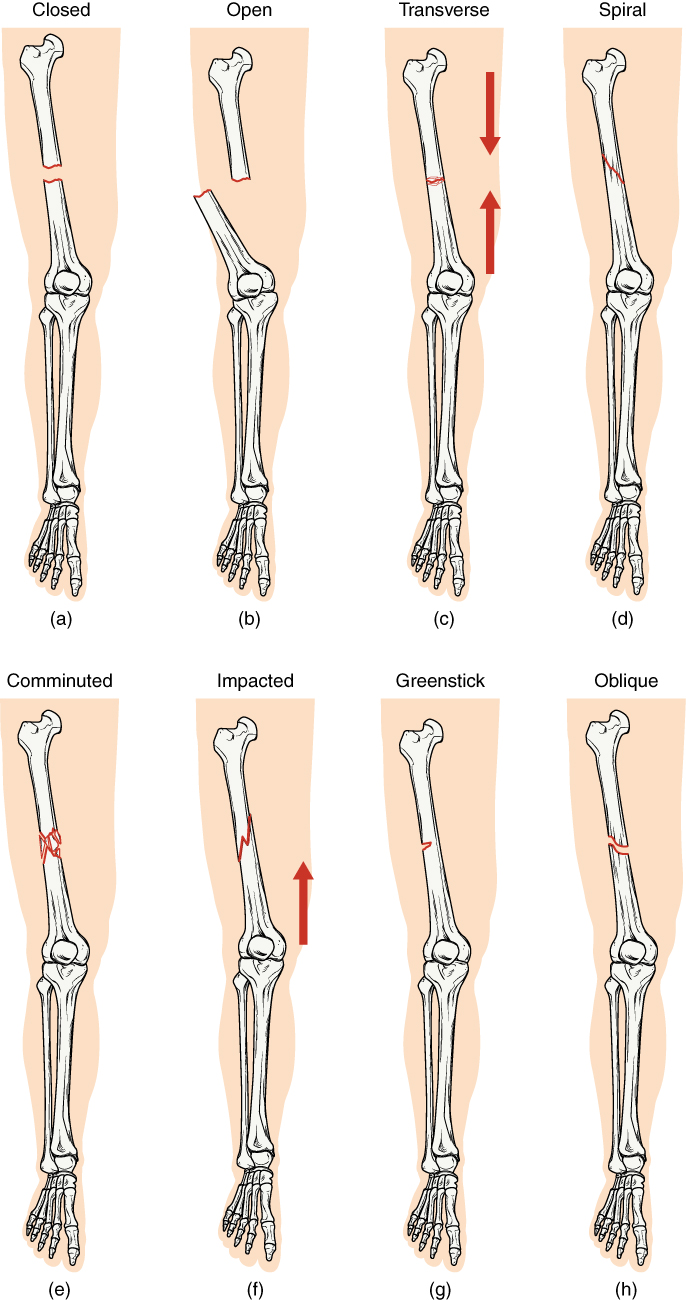 E-Book 05 - Fractures: Bone Repair: Types of Fractures