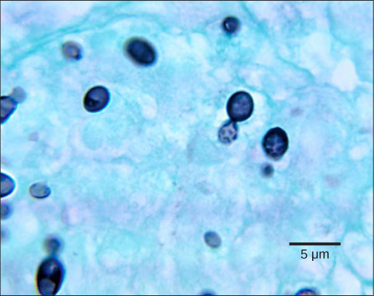 Micrograph shows budding yeast cells. The parent cells are stained dark blue and round, with smaller, teardrop shaped cells budding from them. The cells are about 2 microns across and 3 microns long.