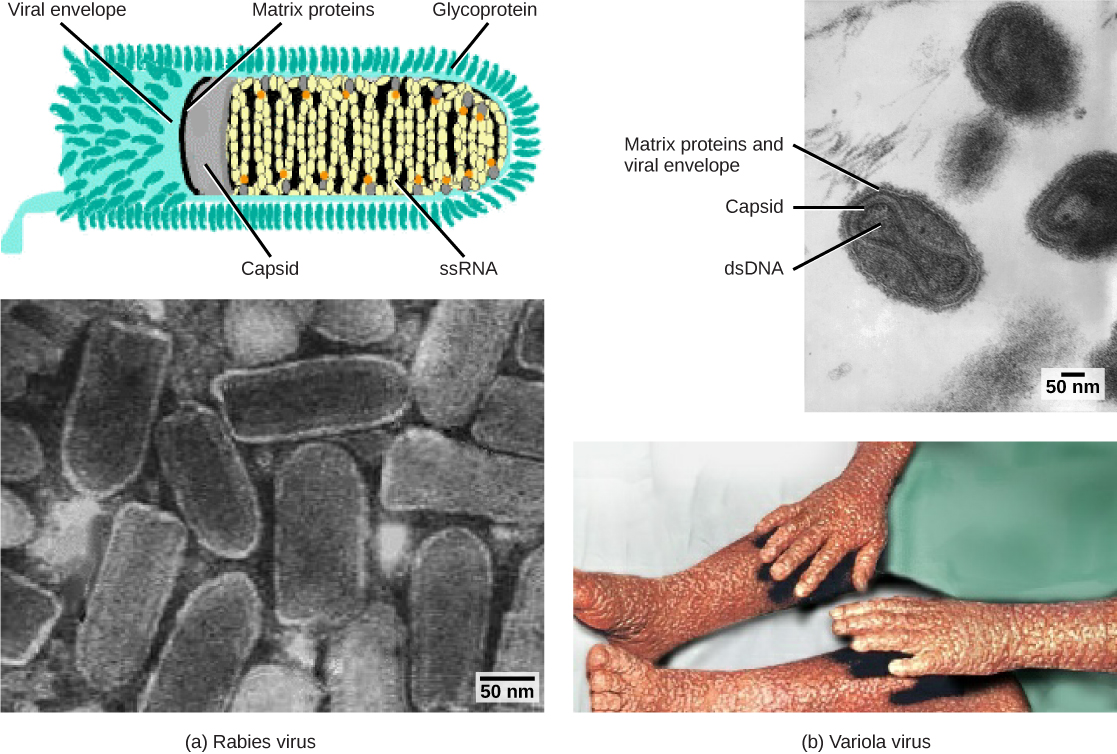 Viruses are classified based on their core genetic material and capsid design. (a) Rabies virus has a single-stranded RNA (ssRNA) core and an enveloped helical capsid, whereas (b) variola virus, the causative agent of smallpox, has a double-stranded DNA (dsDNA) core and a complex capsid....