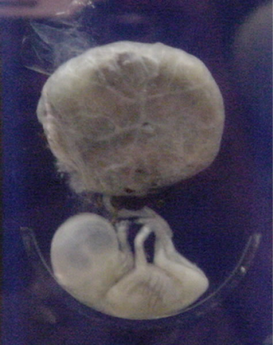 The second trimester fetus has long arms and legs, and is attached to the placenta, which is round and larger than the fetus.