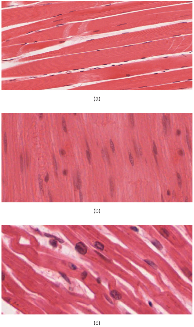 muscular system module 2: overview of muscle tissues, Muscles
