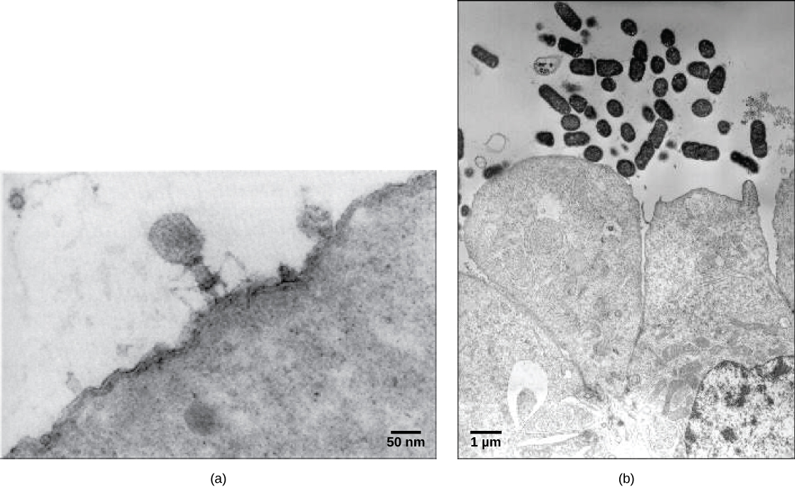 In these transmission electron micrographs, (a) a virus is dwarfed by the bacterial cell it infects, while (b) these E. coli cells are dwarfed by cultured colon cells.