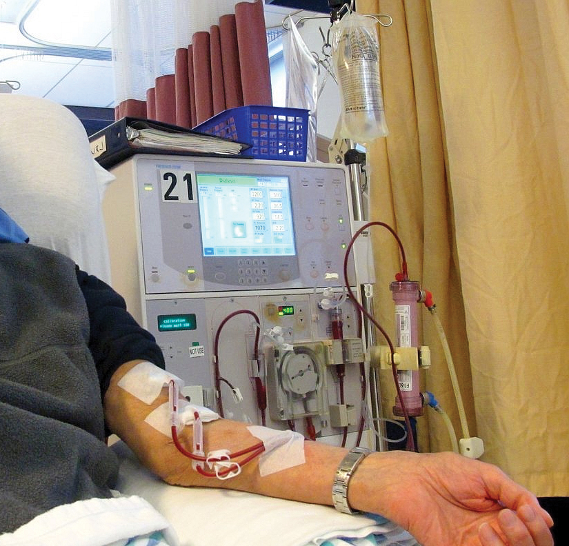 A photo shows a man's arm connected to a dialysis machine. There are two blood-filled tubes conveying blood to and from his arm. The machine has a cylindrical filter, a mechanical circular pump, a bag of saline, and a display screen with various readings.