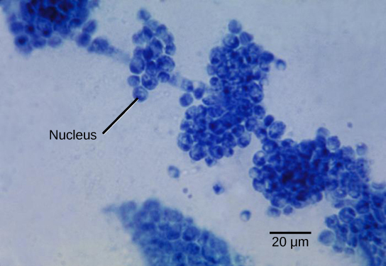 Micrograph shows clumps of small blue spheres. Each sphere is about 5 microns across.