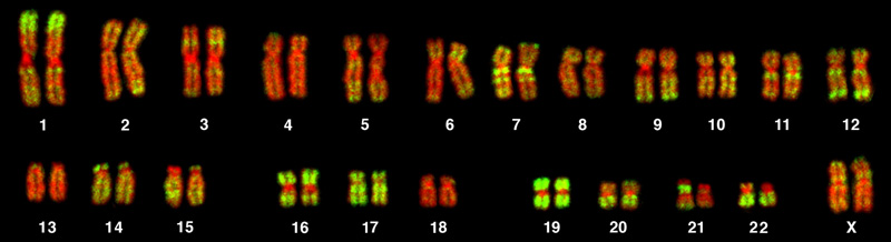This karyotype is of a female human