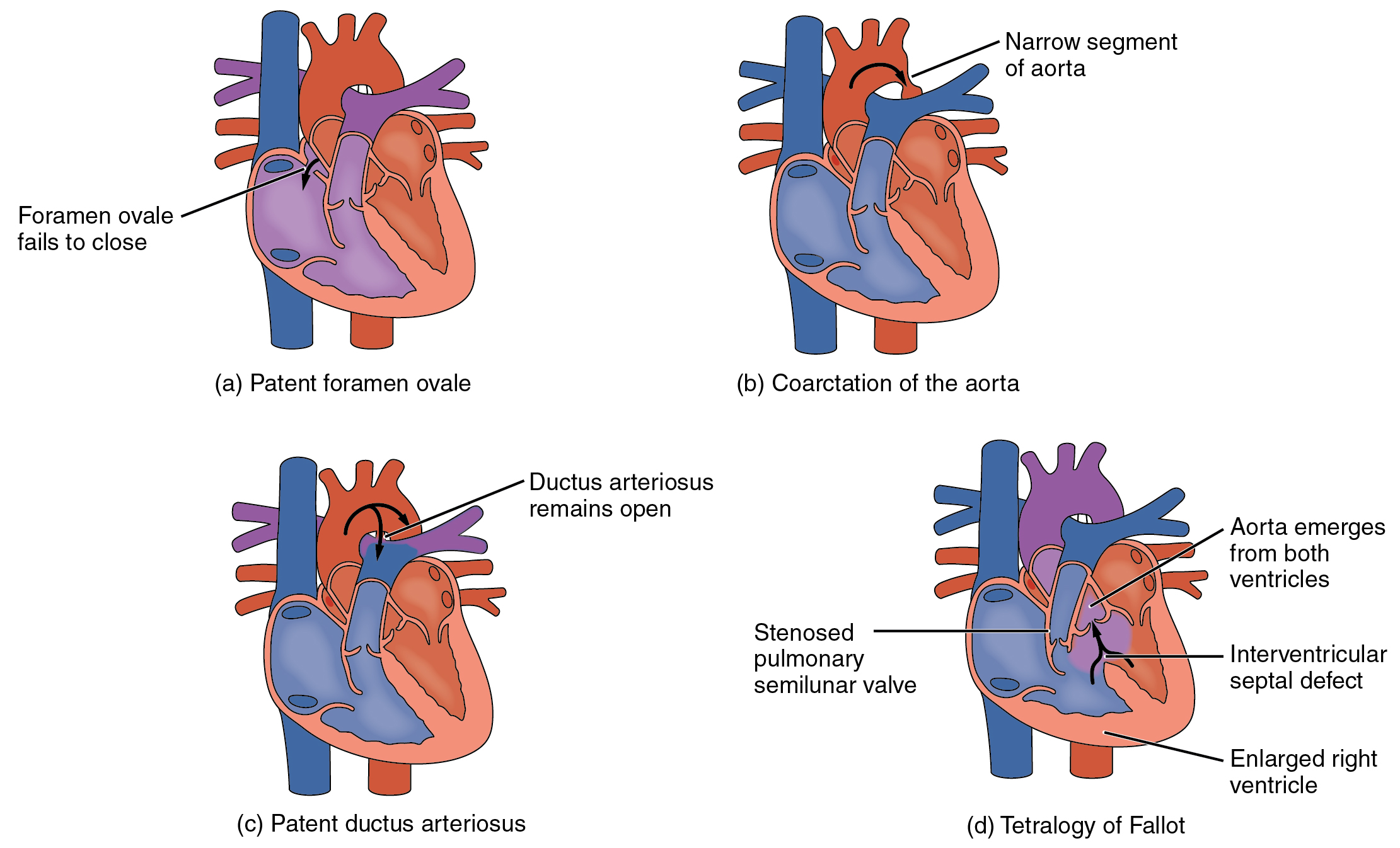 This diagram shows the structure of the heart with different congenital defects. The top left panel shows patent foramen ovale, the top right panel shows coarctation of the aorta, the bottom left panel shows patent ductus ateriosus and the bottom right shows tetralogy of fallot.
