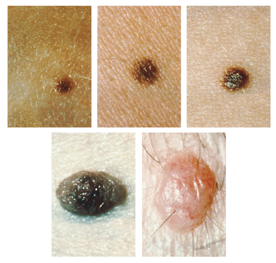 Five photos of moles. The three upper photos show moles that are small, flat, and dark brown. The bottom left photo shows a dark black mole that is raised above the skin. The bottom right photo shows a large, raised, reddish mole with protruding hairs.