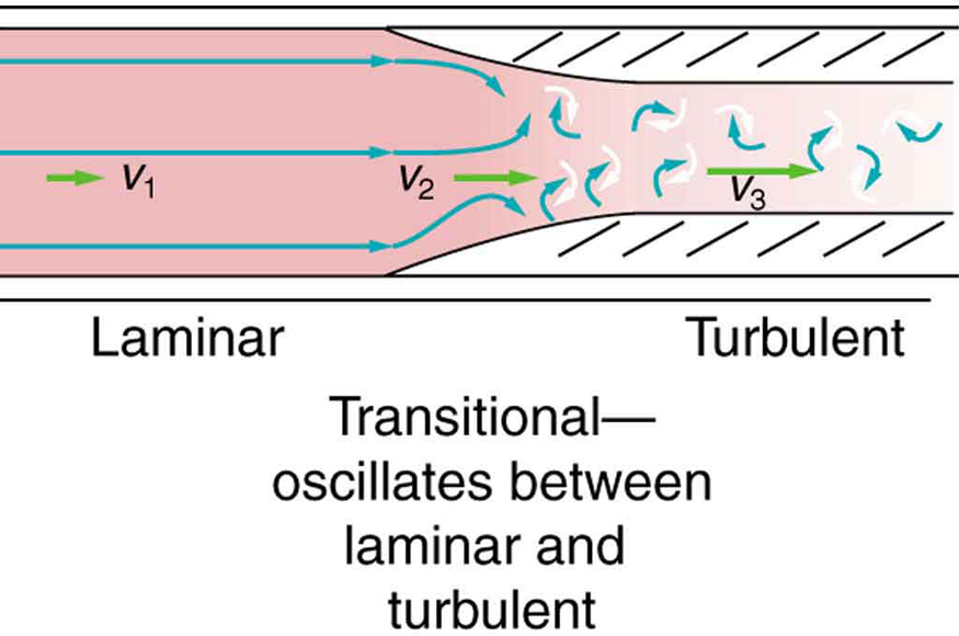 Figure shows a rectangular section of a blood vessel. The blood flow is shown toward right. The blood vessel is shown to be broader at one end and narrow toward the opposite end. The flow is shown to be laminar as shown by horizontal parallel lines. The velocity is v one in the broader section of blood vessel. The junction where the tube narrows the velocity is v two. The lines of flow are shown to bend. The regions where the blood vessels are narrow, the flow is shown to be turbulent as shown to by curling arrows. The velocity is given by v three toward right. The length of the arrows depicting the velocities represent that v three is greater than v two greater than v one.