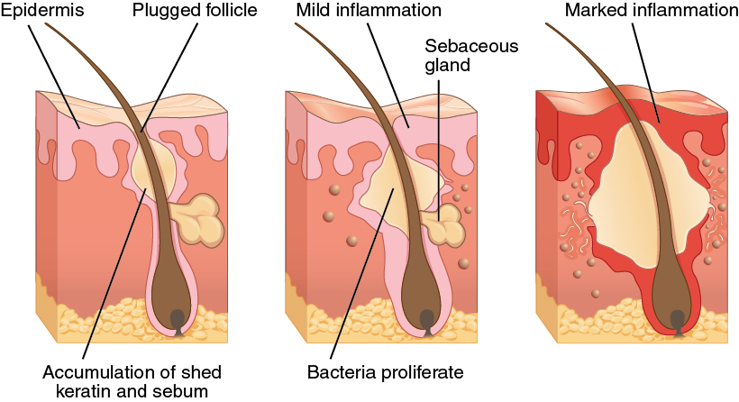 Diseases  Disorders  And Injuries Of The Integumentary