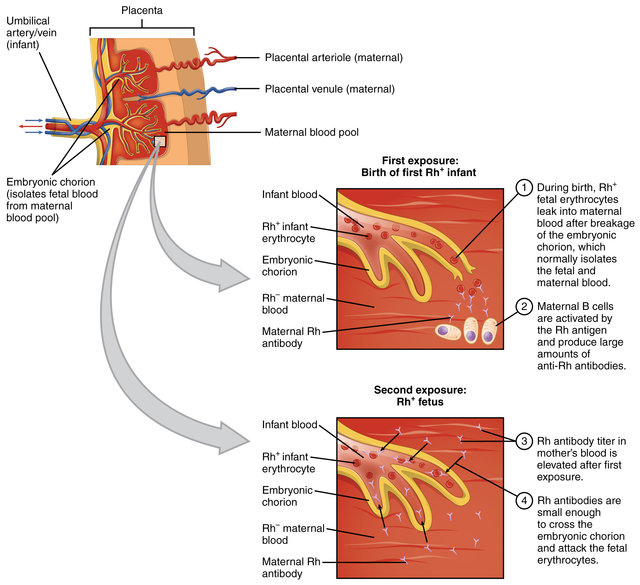Blood Typing - Anatomy & Physiology - OpenStax CNX