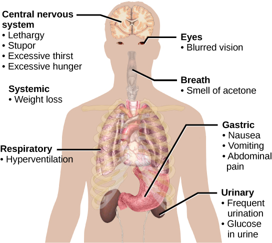 Symptoms of diabetes include excessive thirst, excessive hunger, lethargy and stupor, blurred vision, weight loss, breath that smells like acetone, hyperventilation, nausea, vomiting, abdominal pain, frequent urination, and glucose in the urine.