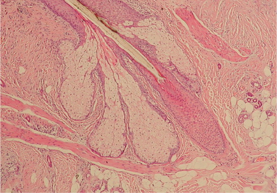 This micrograph is of the base of a hair follicle. The protruding hair is largely transparent, with only its dark outline visible. The inner root sheath is visible surrounding the very bottom of the hair as a circle of cells with dark-staining nuclei. The inner sheath extends up the hair shaft. The outer root sheath is much thicker than the inner root sheath, consisting of a large oval of lighter staining cells. The oval surrounds the bottom of the hair and extends into the hypodermis.
