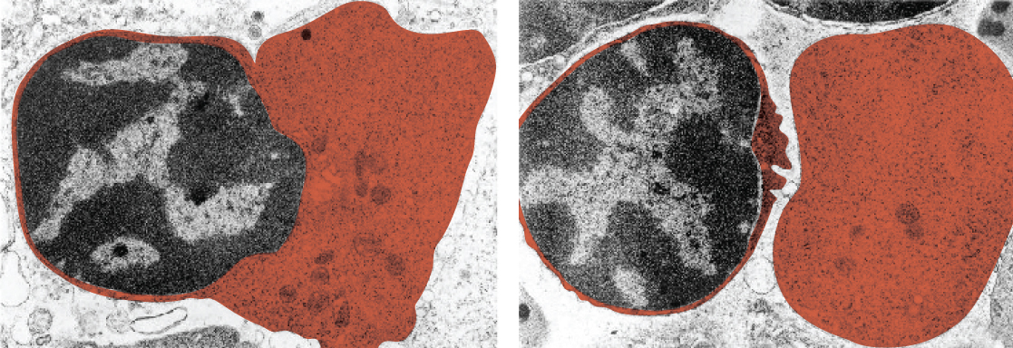 This set of micrographs shows a red blood cell extruding its nucleus. In the left panel, the nucleus is partially extruded from the red blood cell and in the right panel, the nucleus is completely extruded from the cell.