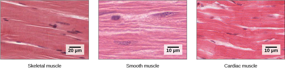 The skeletal muscle cells are long and appear striated due to the arrangement of their myofilaments. Each cell has multiple nuclei. Smooth muscle cells have no striations and only one nuclei per cell. Cardiac muscle cells are striated but have only one nucleus. The cells are arranged in branching bundles.