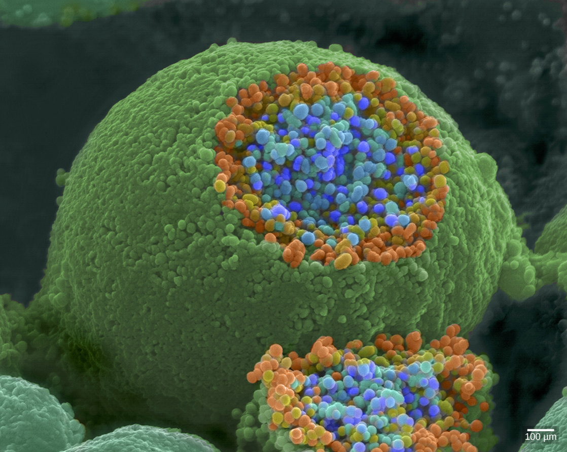 The axon terminal is spherical. A section is sliced off, revealing small blue and orange vesicles just inside.